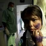 Blestemul lui Allah. O boala cumplita se intinde pe teritoriile ISIS. Zeci de mii de cazuri – VIDEO