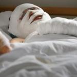 tratament-pacient-arsuri-3